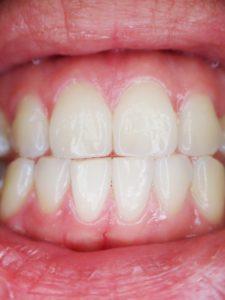 Sourire dent femme