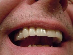 Sourire dents homme